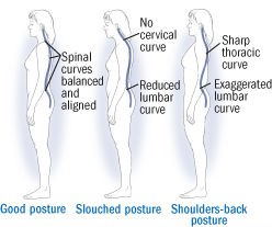 how to get better posture and why it's important